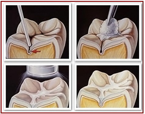 The procedure for dental sealants costs one-third of the price of filling a cavity.http://www.vistadental.com/preventative/dental-sealants/